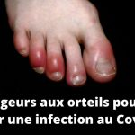 orteils rouge covid19